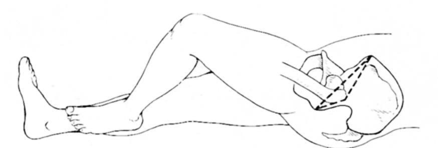 Смещение большого вертела выше линии Розер-Нелатона при варусных переломах