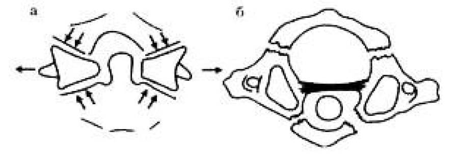 Схематическое изображение перелома Джеферсона