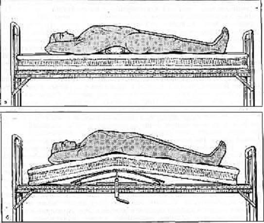 Схематическое изображение этапной репозиции путем «переразгибания» позвоночника на валике