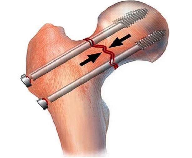 Схема остеосинтеза винтами при переломе шейки бедра