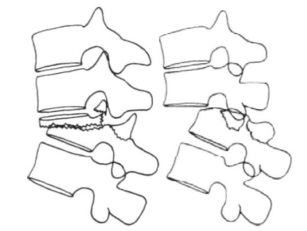 Схема разных вариантов переломо-вывихов