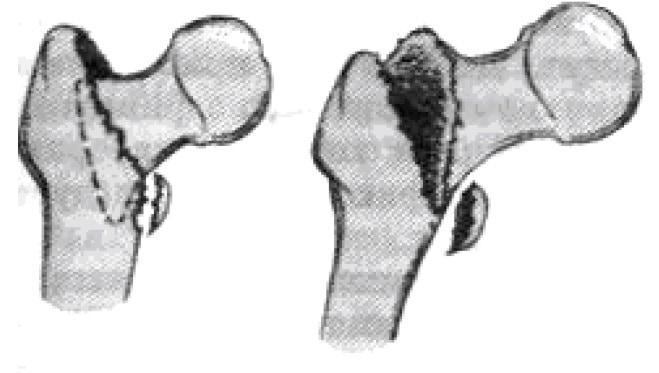 Чрезвертельный перелом с отрывом малого бугорка (нестабильный тип)