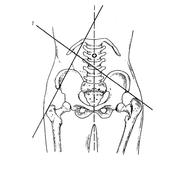 Нормальное (справа) и типичное отклонение линии Шумахера при варусном переломе (слева)