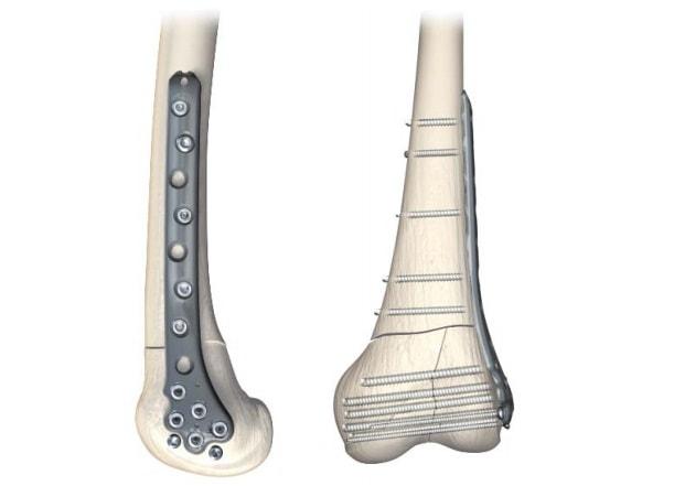 Остеосинтез перелома дистального отдела бедренной кости пластиной PERI-LOC фирмы Smith&Nephew
