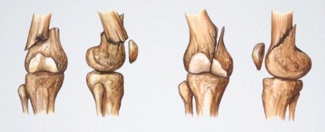 Переломы дистального отдела бедренной кости