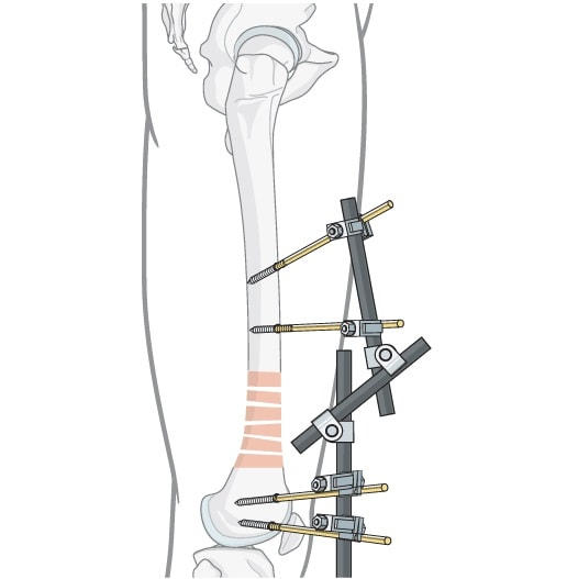 Схематическое изображение остеосинтеза надмыщелковых переломовбедренной кости аппаратом внешней фиксации