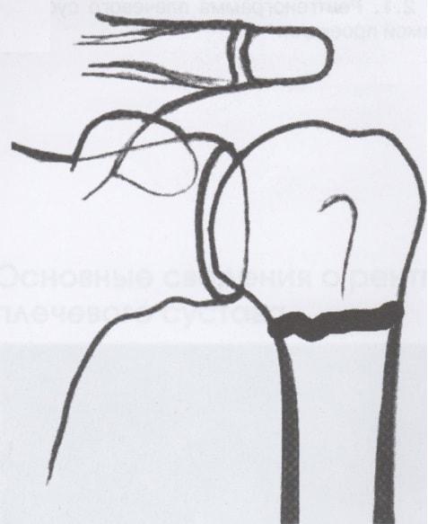 Рентген схема: повреждение хирургической шейки плечевой кости