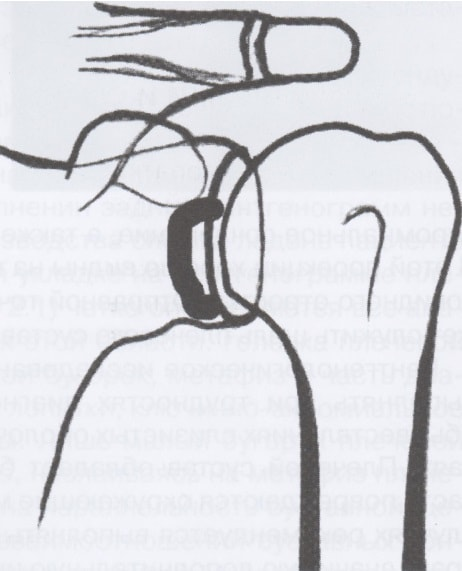 Рентген схема: повреждение шейки лопатки