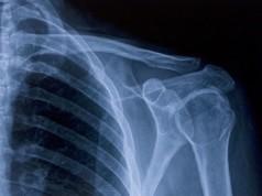 Рентген плчевого сустава