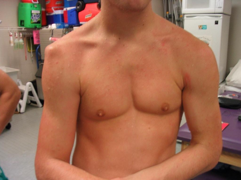 Рентген плечевого сустава - 56 адресов