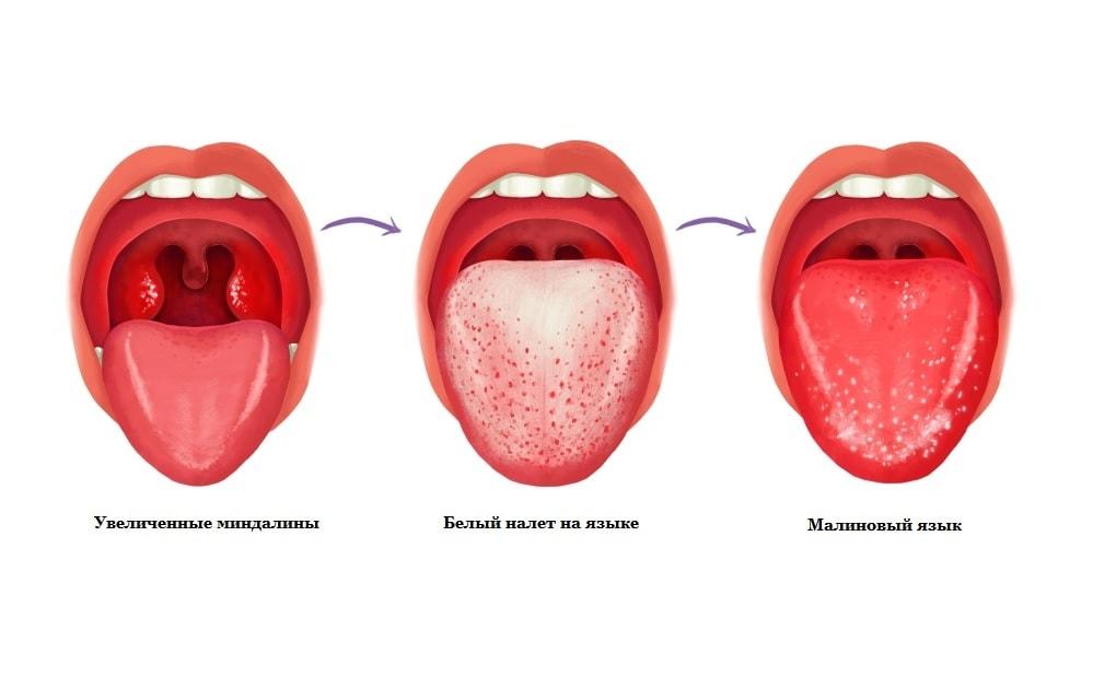 Скарлатина и малиновый язык: диагностика и лечение
