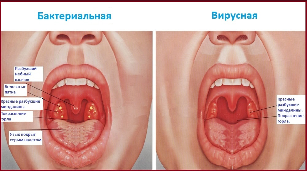 дифдиагностика вирусного и бактериального фарингита