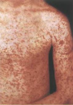 коревая сыпь на туловище взрослого пациента