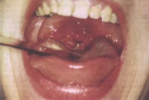 лакунарный тонзиллит? 3-4ый день болезни