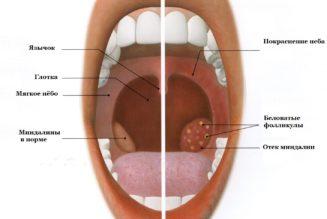 Фарингит-тонзиллит-ангина: как отличить и чем лечить?