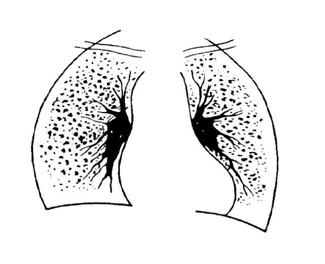 пневмокониоз легких