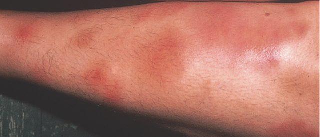 Узловая эритема (панникулит)