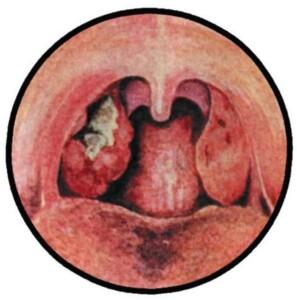 ангина симановского венсана