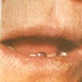 предраковые заболевания полости рта