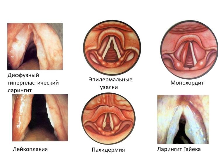 классификация хронического ларингита