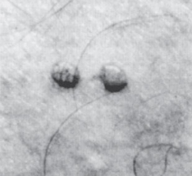 контагиозный моллюск
