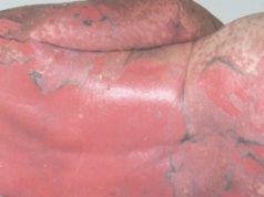 токсический эпидермальный некролиз