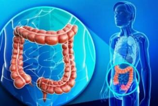 Рак толстой кишки: диагностика и лечение