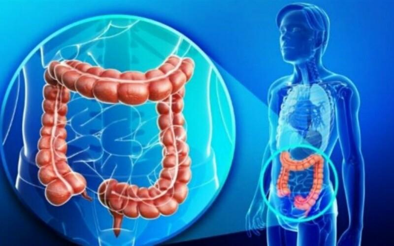 Рак толстой кишки: причины развития,  скриннинг, профилактика