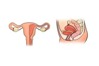 хронический эндометрит